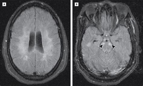 Multiple Sclerosis Disease Progression and
